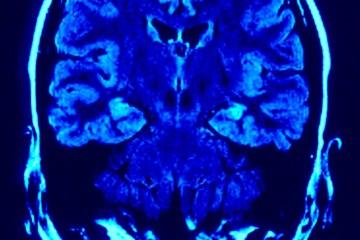 lo-sviluppo-del-cervello-nel-bambino